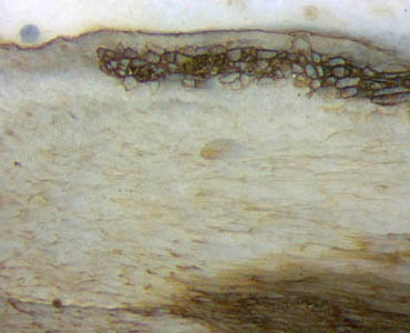 "Aglaophyton ""hollow straw"" tissue"